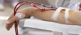 GranuFlo & Dialysis Lawsuits
